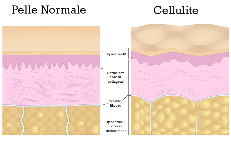 cellulite-pressoterapia