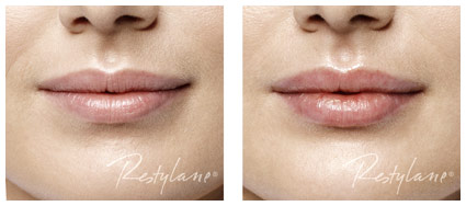 Restylane_Before and After_017_Lips_LR