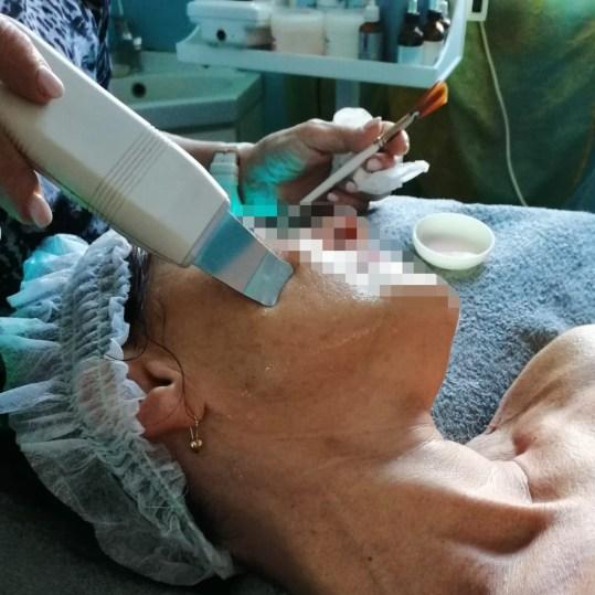 ultrasuoniviso3b