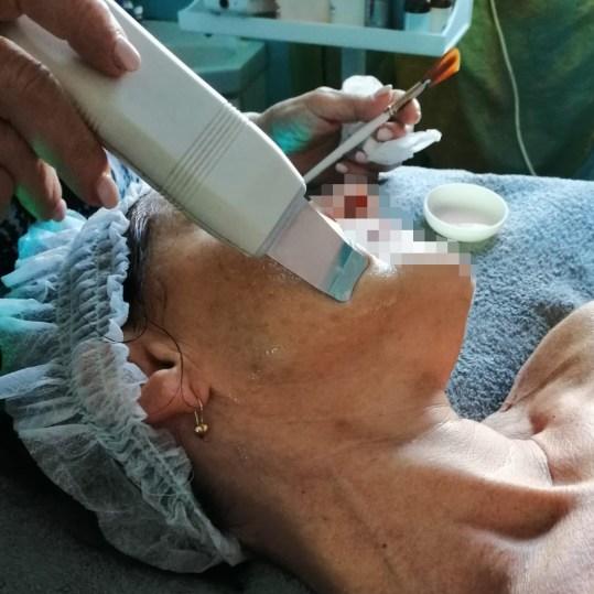 ultrasuoniviso4b