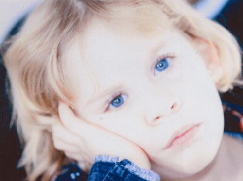 Pediatrics  Prosthetic Eyes for Children  Esthetic Eyes