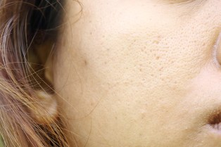 Pores dilatés