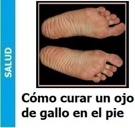 como_curar_un_ojo_de_gallo_en_el_pie_Portada