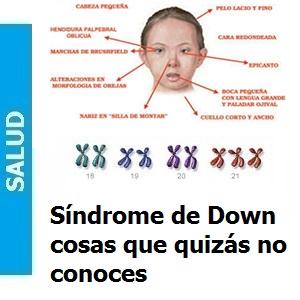 Síndrome de Down cosas que quizás no conoces, Síndrome de Down, cosas que quizás no conoces