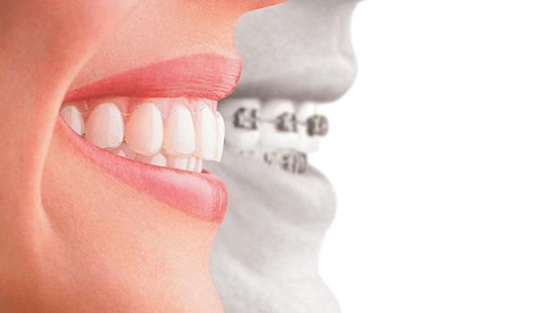 Servicios ortodoncia Barcelona
