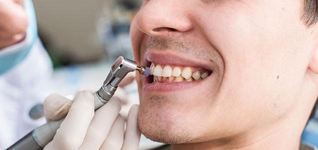 Fases de una limpieza dental