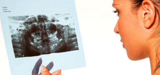 ¿Para qué sirve una ortopantomografía?