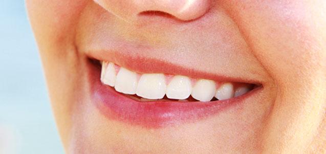 Blanqueamiento dental, mitos y verdades
