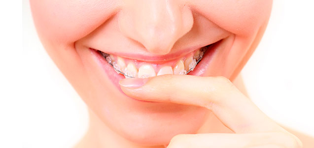 Principales objetivos de los tratamientos de ortodoncia