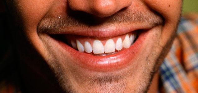 Ponerse un Implante dental. ¿Marca o Profesional?