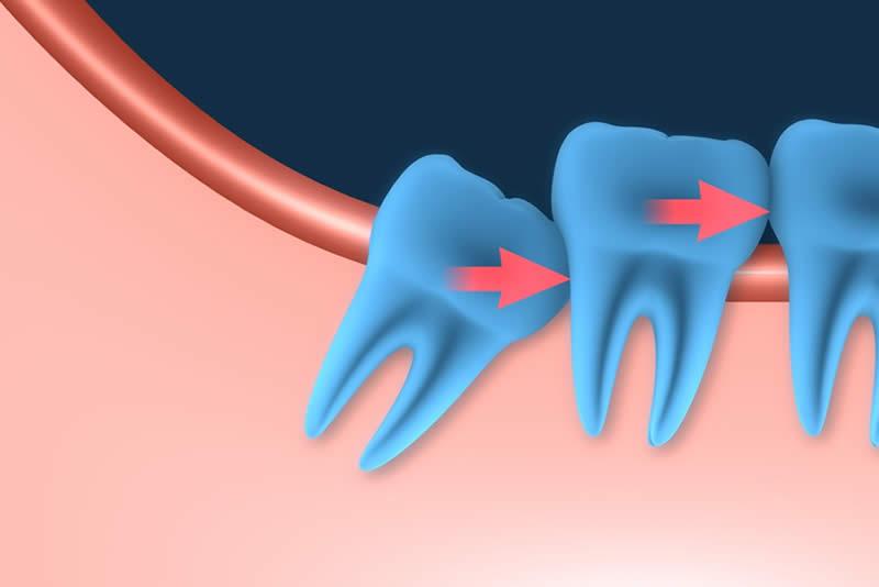 la ortodoncia para solucionar dientes incluidos estudi dental barcelona. Black Bedroom Furniture Sets. Home Design Ideas