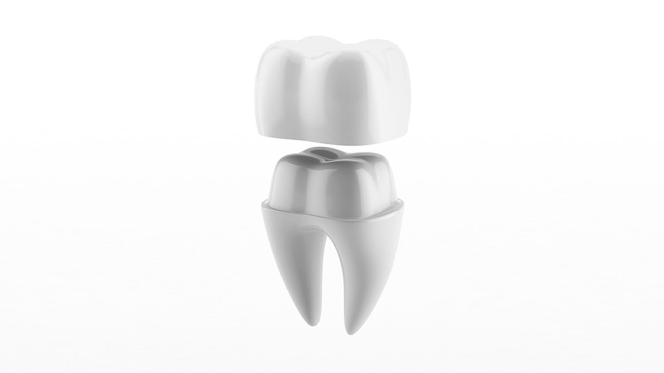 coronas fundas dentales Barcelona