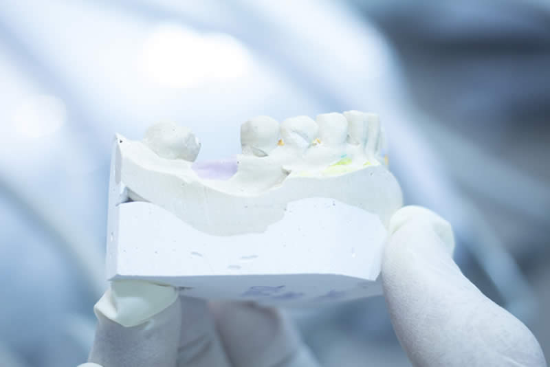 Encerado diagnostico estetica dental barcelona