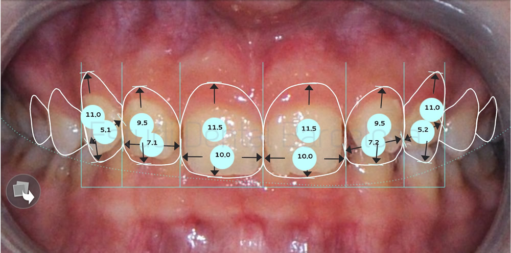caso-carillas-dentales-para-exceso-de-encias-proporciones