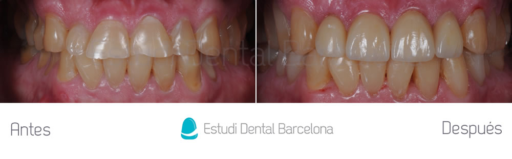 dientes-cortos-o-desgastados-caso-clinico-carillas-apretando