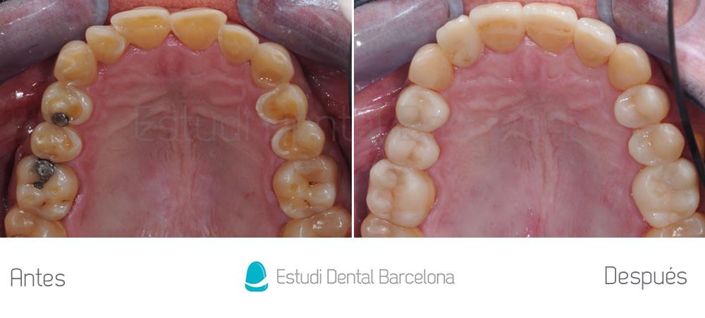 dientes-cortos-o-desgastados-caso-clinico-carillas-arriba