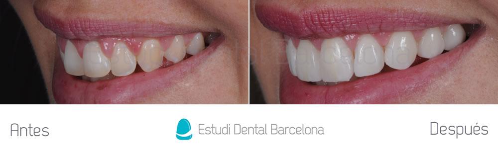 dientes-detras-de-otros-caso-clinico-carillas-dentales-izquierda
