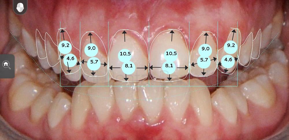 dientes-detras-de-otros-caso-clinico-carillas-dentales-proporciones