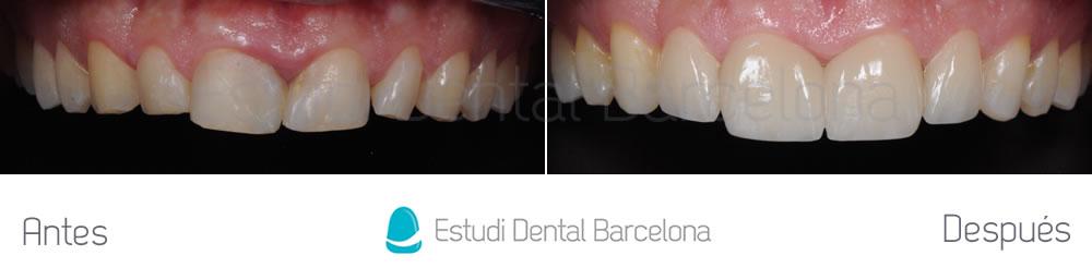 dientes-rotos-caso-clinico-carillas-de-porcelana-arcada-superior