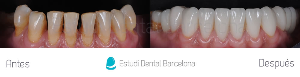 Enc as retra das caso cl nico con carillas dentales edb for Estudi dental barcelona