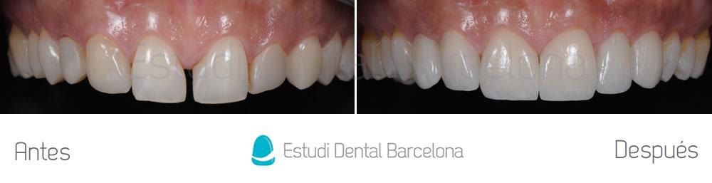 espacios-entre-dientes-y-carillas-caso-clinico-arcada-superior