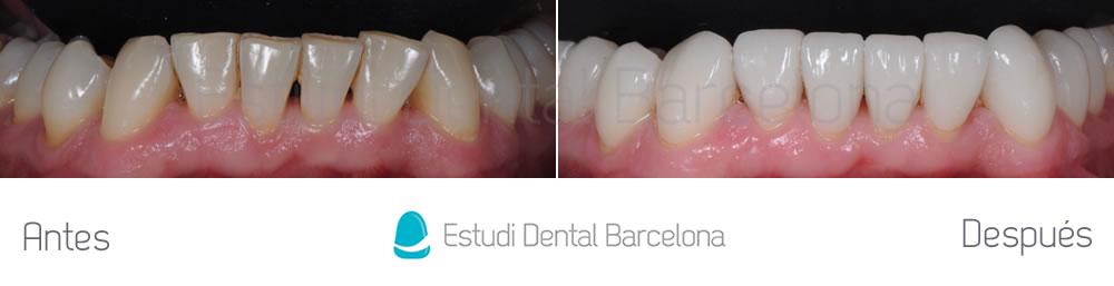 rejuvenecimiento-dental-con-carillas-sin-tallado-caso-clinico-arcada-inferior