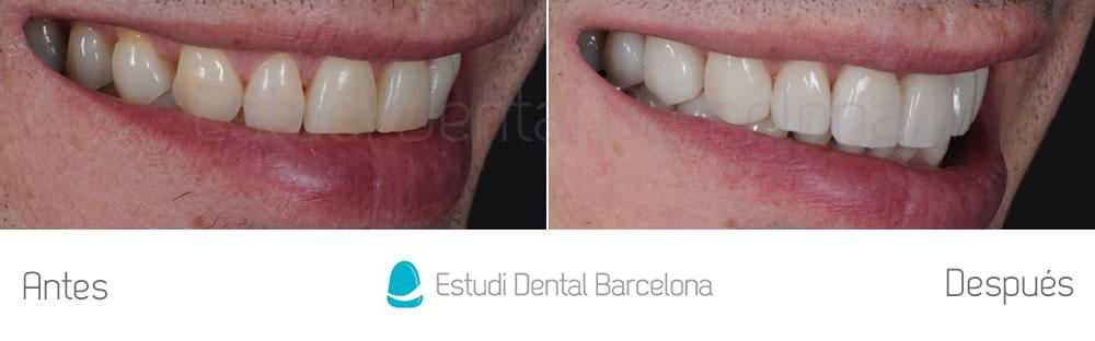 rejuvenecimiento-dental-con-carillas-sin-tallado-caso-clinico-derecha