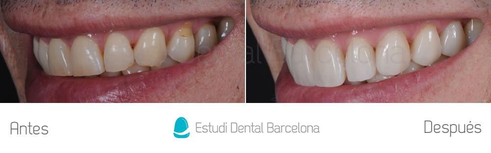 rejuvenecimiento-dental-con-carillas-sin-tallado-caso-clinico-izquierda