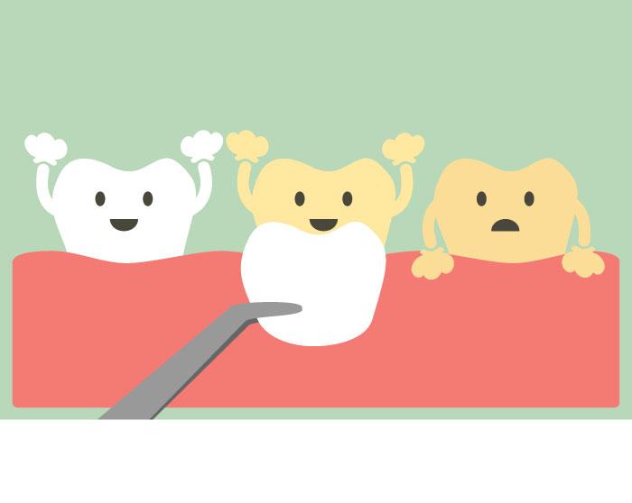 carillas de porcelana para mejorar el aspecto de sus dientes