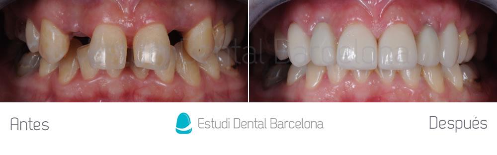 agenesia-de-laterales-y-carillas-de-porcelana-con-implantes-dentales-antes-y-despues-apretando