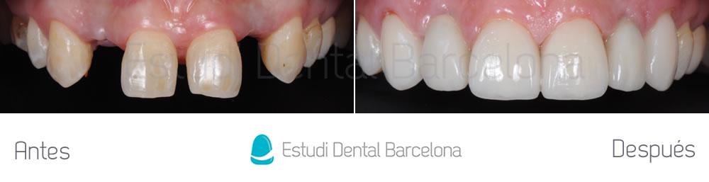 agenesia en implantes dentales