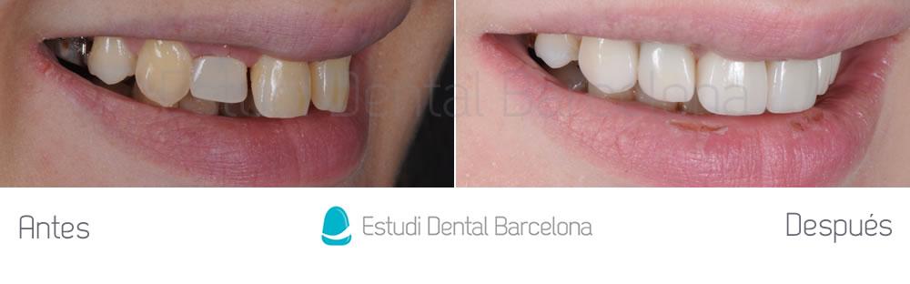 agenesia-de-laterales-y-carillas-de-porcelana-con-implantes-dentales-antes-y-despues-derecha