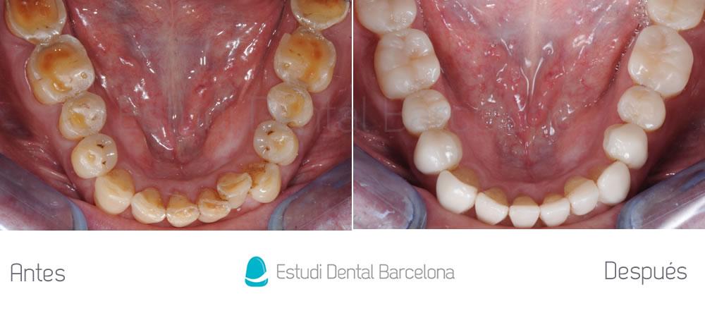 bruxismo-y-rejuvenecimiento-dental-antes-y-despues-interior-inferior