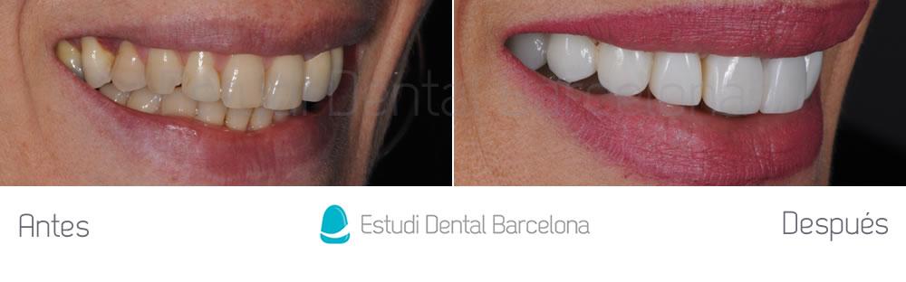 coronas-viejas-y-malposicion-dental-antes-y-despues-derecha