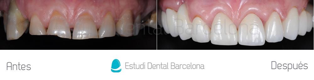 desgaste-dental-y-encias-retraidas-antes-y-despues-carillas-dentales-arcada-superior
