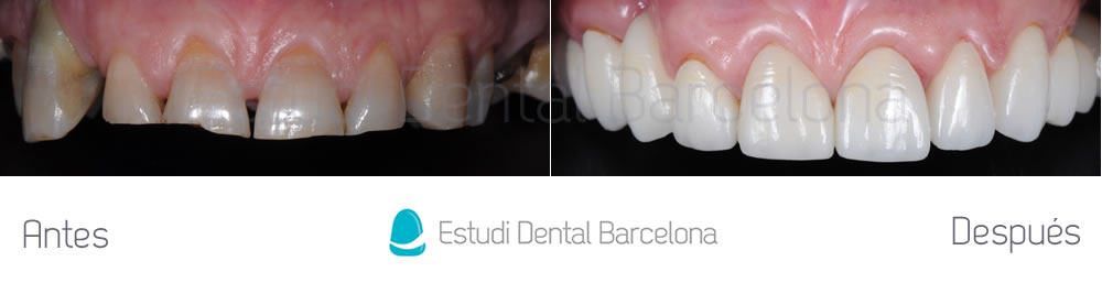 desgaste-dental-y-encias-retraidas-antes-y-despues-carillas-dentales-arcada-superior