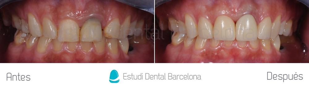diastema-y-dientes-separados-antes-y-despues-carillas-dentales-apretando