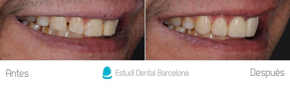 diastema-y-dientes-separados-antes-y-despues-carillas-dentales-dercha