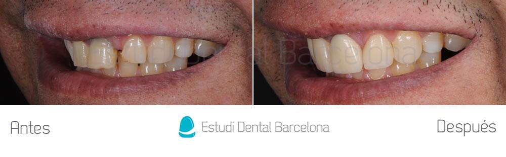 diastema-y-dientes-separados-antes-y-despues-carillas-dentales-izquierda