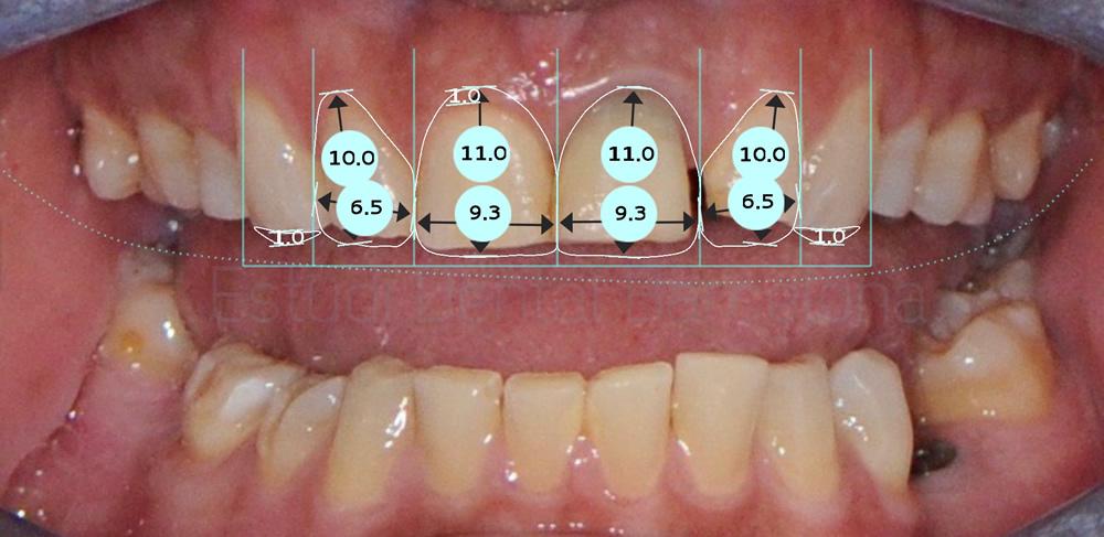 diastema-y-dientes-separados-antes-y-despues-carillas-dentales-proporciones