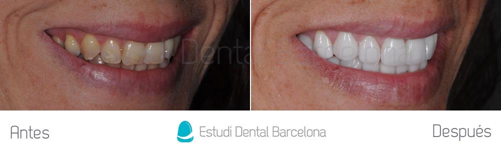 dientes-amarillos-y-desgastados-antes-y-despues-carillas-derecha