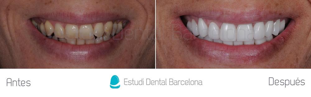 dientes-amarillos-y-desgastados-antes-y-despues-carillas-frente