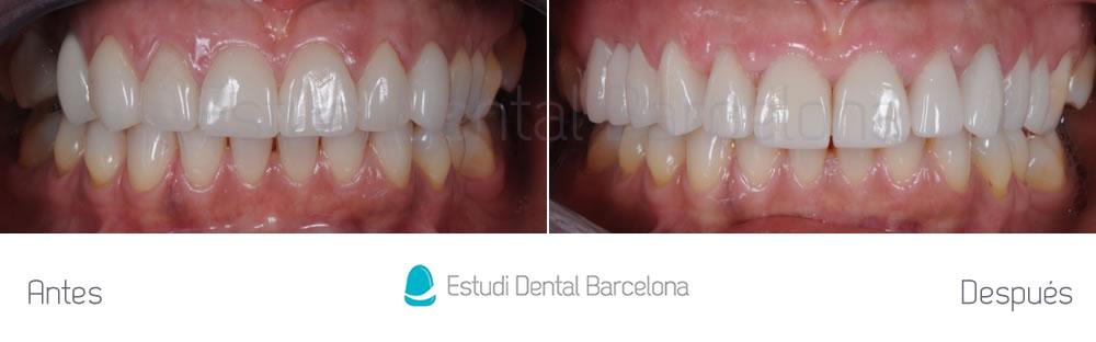 dientes-cortos-y-ausencia-dental-caso-clinico-apretando