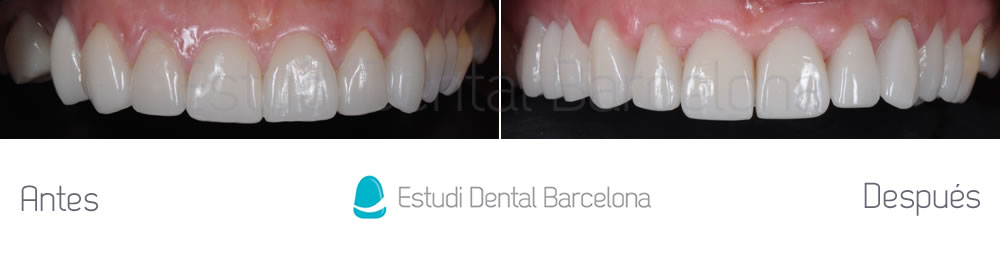 dientes-cortos-y-ausencia-dental-caso-clinico-de-carillas-dantales-antes-y-despues-arcada-superior