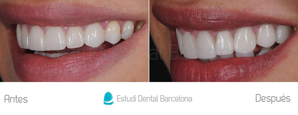 dientes-cortos-y-ausencia-dental-caso-clinico-izquierda