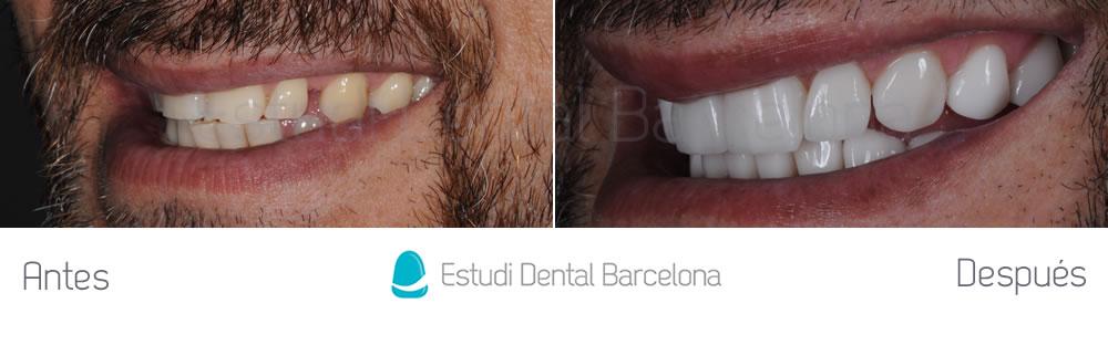 dientes-desgastados-y-diastema-antes-y-despues-carillas-dentales-izquierda