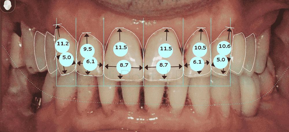 dientes-desgastados-y-manchas-antes-y-despues-carillas-dentales-proporciones