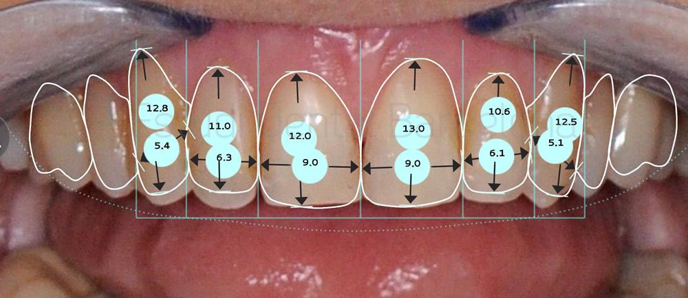 dientes-envejecidos-caso-clinico-carillas-de-porcelana-proporciones