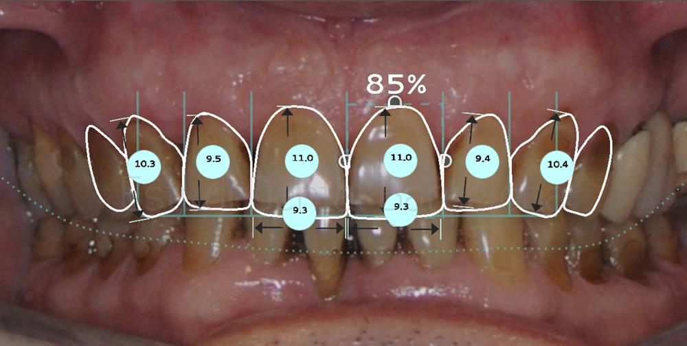 dientes-manchados-caso-clinico-carillas-dentales-proporciones