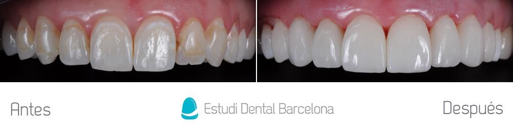 dientes-manchados-y-composite-viejo-antes-y-despues-carillas-aracada-superior